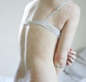 Bőrproblémák kezelése hatékonyan